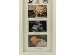 Rama foto prima ecogravie, gravida si bebelusul cand s-a nascut tripla