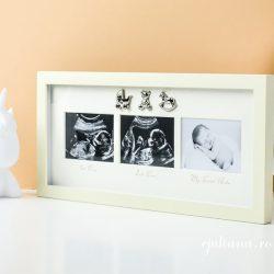 Rama prima ecografie bebelus